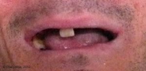 Implant-Dentaire-Cas-clinique