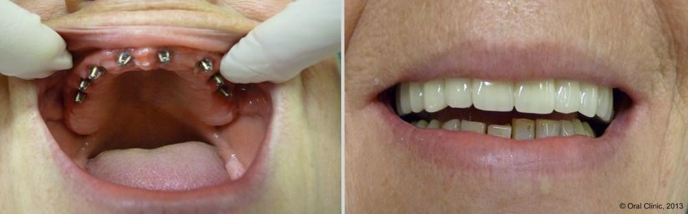 prothese dentaire Barre d' Ackerman. La clinique dentaire Cunit offre des solutions de prothèse sur Barre d'Ackerman à un bon rapport qualité prix