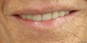 Prothèse maximillaire pas chere clinique en espagne. Solutions de prothese dentaire maxillaire hybride fixe à un bon rapport qualité prix.