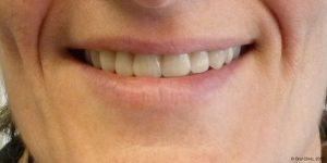 Prothèse maximillaire clinique dentaire espagne. Oral Clinic: clinique offrant un service de dentiste pas cher mais de qualité en Espagne.
