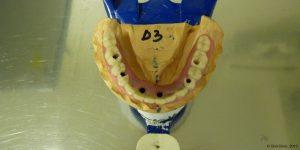 Pose d'une prothese dentaire clinique Espagne. Oral Clinic: clinique offrant un service de dentiste pas cher mais de qualité en Espagne