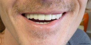 Dentiste-Pas-Cher-Espagne-Prothese-Ceramo-Metallique-Resultat-5