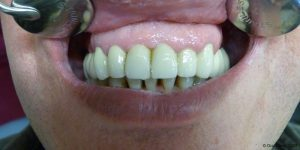 Dentiste-Pas-Cher-Espagne-Prothese-Ceramo-Metallique-Resultat-7