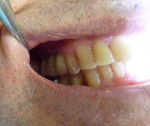Implant-Dentaire-Dentiste-Espagne