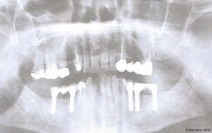 Implant-Dentaire-Pas-Cher-Espagne-Nos-Implants-STRAUMANN