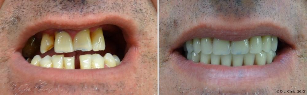 Prothese-dentaire-Maximillaire-avant-et-apres