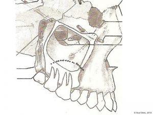 Implant-Dentaire-Pas-Cher-Espagne-Regeneration-Osseuse-elevation-sinus