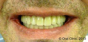 Implant-Dentaire-Pas-Cher-Espagne-Homme