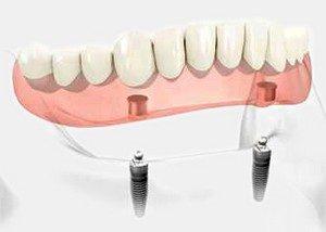 Prothèse Dentaire Sur Barre D'ackerman - prothèse dentaire amovible soutenue par une barre, vissée sur les implants, afin de rester fixe. En Espagne par Oral Clinic
