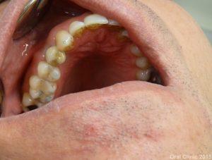 Couronne dentaire scéllée sur implant monobloc 4