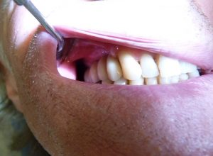 Implant-Dentaire-Oral-Clinic