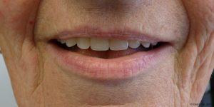 Prothèse dentaire maximillaire clinique espagne