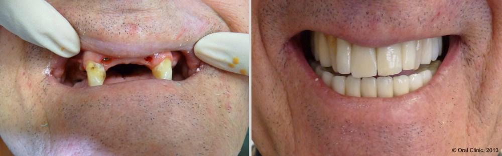 prothese dentaire barre Ackerman. La clinique dentaire Cunit offre des solutions de prothèse sur Barre d'Ackerman à un bon rapport qualité prix