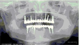 REHABILITATION COMPLETE SUR IMPLANTS ET DENTS 2