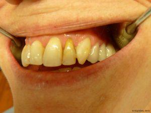 Implant-Dentaire-Pas-Cher-Espagne-Nos-Implants-BREDENT-CIRCONIO