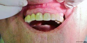 Dentiste-Pas-Cher-Espagne-Prothese-Ceramo-Metallique-Resultat-1