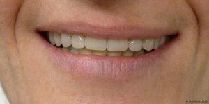 prothese dentaire maximillaire pas chere qualité