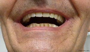 Pose prothèse dentaire sur Barre d'Ackerman. La clinique dentaire Cunit offre des solutions de prothèse sur Barre d'Ackerman à un bon rapport qualité prix