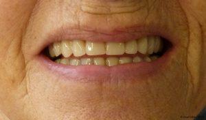 Barre d'Ackerman - Pose prothèse dentaire. Prothèse sur barre d'Ackerman est une prothèse dentaire amovible soutenue par une barre, vissée sur les implants