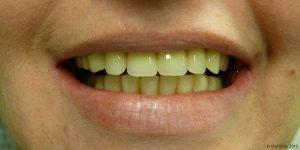 Dentiste-Pas Cher-Espagne-Prothese-Maximillaire
