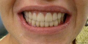 Pose d'une prothèse dentaire clinique Espagne