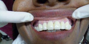 Dentiste-Pas-Cher-Espagne-Prothese-Ceramo-Metallique-Resultat