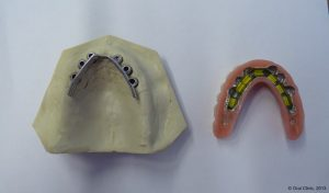 Pose prothese dentaire barre Ackerman pas cher. La clinique dentaire Cunit offre des solutions de prothèse sur Barre d'Ackerman à un bon rapport qualité prix