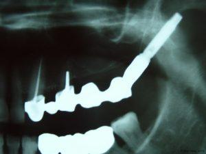 Implant-Dentaire-Pas-Cher-Espagne-Regeneration-Osseuse-moins-de-douleurs-post-opératoires