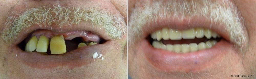 Pose Prothese dentaire maximillaire pas chère. Prothese dentaire maxillaire hybride fixe à un bon rapport qualité prix