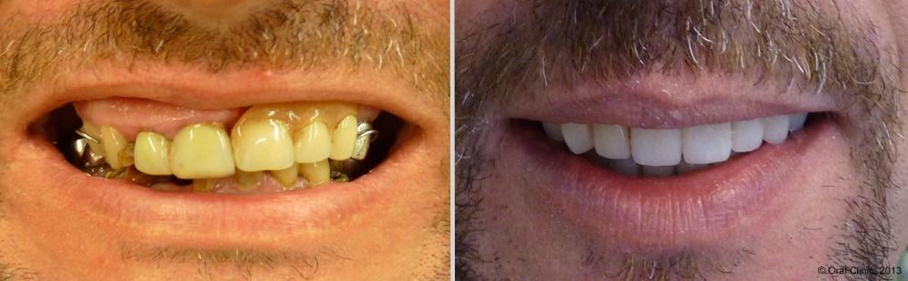 Pose Prothese dentaire maximillaire Espagne. Prothese dentaire maxillaire hybride fixe à un bon rapport qualité prix.