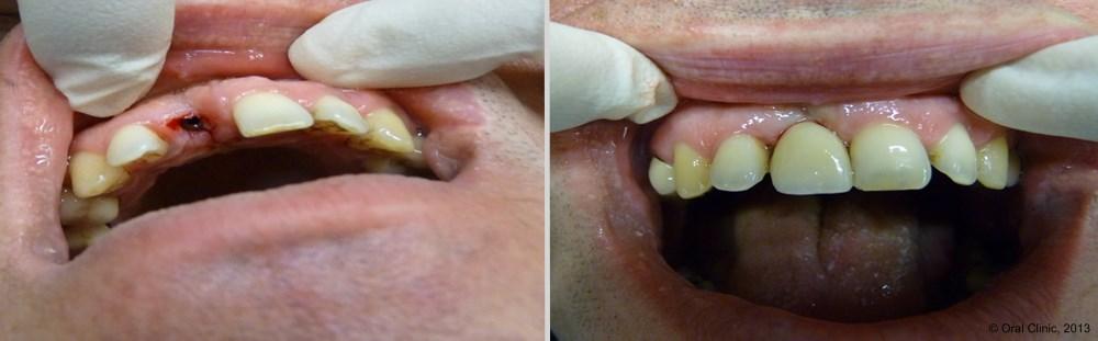 Dentiste-Pas-Cher-Espagne-Prothese-Ceramo-Metallique