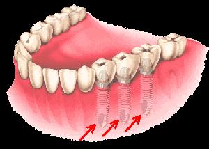 Implant dentaire et pose d'implants dentaires en Espagne. Oral Clinic vous informe sur les implants dentaires en Espagne