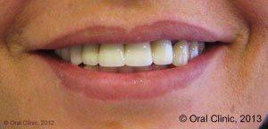 Implant-Dentaire-Pas-Cher-Espagne-Femme