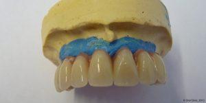 Prothèse dentaire maximillaire clinique en espagne. Ce système de prothèse maxillaire hybride fixe permet de maintenir la stabilité de la bouche.