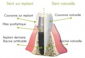 Implant dentaire et pose d'implant dentaire en Espagne. Oral Clinic vous accueille et vous guide pour la pose d'implant dentaire en Espagne