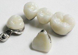 Prothèse Dentaire Ceramo Metallique - Bridge dentaire et couronne dentaire. Découvrez la solution la plus adaptée en Espagne.