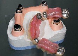 Prothese Dentaire Téléscopique - Prothèse hydride fixe en Espagne par Oral Clinic