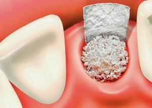 Greffe Et Régénération Osseuse - Comment - pour qui- Oral clinic vous répond
