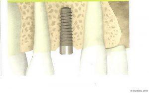 Implant-Dentaire-Pas-Cher-Espagne-Nos-Implants