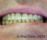prothese dentaire telescopique pas chere. clinique dentaire Cunit offre des solutions de prothèse dentaire hybride fixe télescopique à un bon rapport qualité prix
