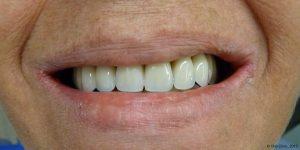 Pose d'une prothèse dentaire en Espagne. Oral Clinic: clinique offrant un service de dentiste pas cher mais de qualité en Espagne